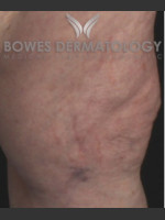 After Photo Spider Vein Treatment - ZALEA Before & After