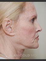 Before Photo Rhytidectomy (Facelift) 1753 Side View - ZALEA Before & After