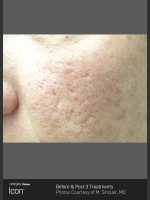 Before Photo Acne Scaring on the Cheeks - Prejuvenation Before & After