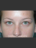 After Photo Lower Eyelid Fat Removal - Patient 4 - Prejuvenation Before & After