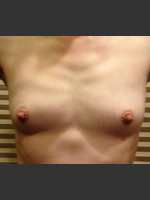 Before Photo Dr. Palmer Breast Augmentation 01  - ZALEA Before & After