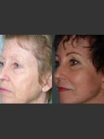 After Photo Full Face Rejuvenation - ZALEA Before & After