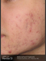 Before Photo Revlite SI Treatment of Facial  Acne Scarring - ZALEA Before & After