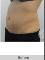 Before Photo CoolSculpting+ Abdomen Treatment - Prejuvenation Before & After