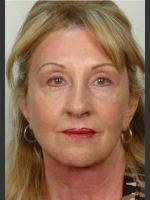 After Photo 61 year old woman treated with Facelift - ZALEA Before & After
