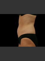 After Photo Body Contouring Treatment #110 - Prejuvenation Before & After