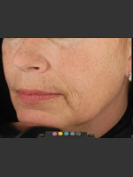 Before Photo Botox Dermal Fillers and Pigment Removal  - ZALEA Before & After