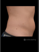 Before Photo CoolSculpting Before & After on Man - ZALEA Before & After