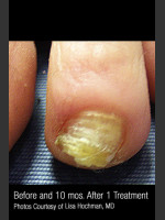 Before Photo Treatment of Nail Fungus #320 - Prejuvenation Before & After