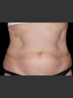 After Photo Body Contouring Treatment #112 - ZALEA Before & After