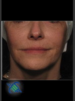 After Photo Facial Laxity of Lower Face with Profound - ZALEA Before & After