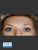 After Photo Neurotoxin Treatment of Forehead 130 - ZALEA Before & After