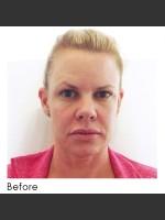 Before Photo Sculptra Facial Rejuvenation - Prejuvenation Before & After