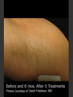 After Photo Hair Removal #311 - Prejuvenation Before & After