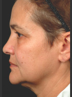 After Photo Thermage Procedure Before and After II - ZALEA Before & After