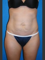 Before Photo Tummy Tuck Case #2 - ZALEA Before & After