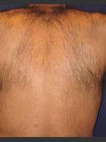 Before Photo Laser Hair Removal - Prejuvenation Before & After