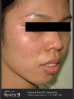 After Photo Before and After Revlite SI Series of Treatments for Melasma - Prejuvenation Before & After