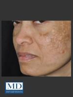 Before Photo Melasma Face Treatment 117 - Prejuvenation Before & After