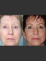 Before Photo Full Face Rejuvenation - ZALEA Before & After