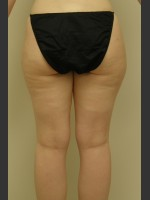 Before Photo Dr. Langdon Liposuction  - ZALEA Before & After