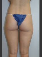 After Photo Liposuction Body Shaping - Prejuvenation Before & After