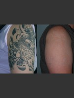 Before Photo Tattoo Removal - ZALEA Before & After