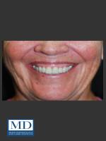 Before Photo Neurotoxin Gummy Smile 129 - ZALEA Before & After