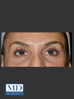 Before Photo Midfacial Filler 136 - ZALEA Before & After
