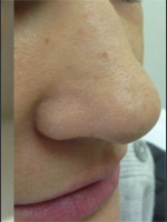 After Photo Treatment of Nose Acne Scar - Prejuvenation Before & After