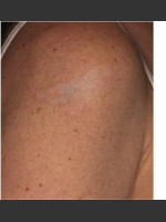 After Photo Treatment of Shoulder Tattoo - Prejuvenation Before & After