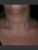 After Photo Alastin Skincare Restorative Neck Complex with TriHex Technology® - Prejuvenation Before & After
