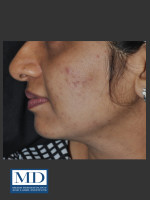 Before Photo Post Inflammatory Hyperpigmentation 120 - Prejuvenation Before & After