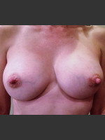 After Photo Dr. Palmer Breast Augmentation 01  - ZALEA Before & After