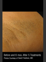Before Photo Hair Removal #313 - ZALEA Before & After