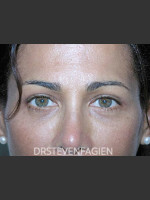 After Photo Blepharoplasty - Patient 2 - ZALEA Before & After