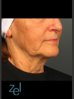 Before Photo Lower Face Ultherapy & Dermal Fillers - Prejuvenation Before & After