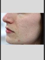 Before Photo Sublative Rejuvenation Treatment - ZALEA Before & After