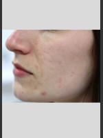 Before Photo Sublative Rejuvenation Treatment - Prejuvenation Before & After