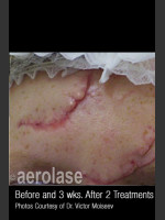 Before Photo Treatment of Traumatic Scars #344 - Prejuvenation Before & After
