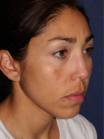 After Photo Facial Pigmentation Removal - ZALEA Before & After