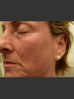 Before Photo Fraxel Laser Treatment for Pigmentation - ZALEA Before & After