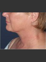 After Photo Facial Liposculpture - Prejuvenation Before & After