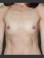 Before Photo Breast Augmentation 592 - ZALEA Before & After