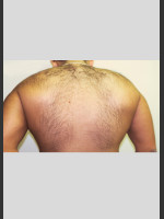 Before Photo Gentle Laser Hair Removal - ZALEA Before & After