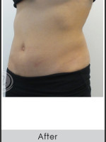 After Photo CoolSculpting+ Abdomen Treatment - Prejuvenation Before & After