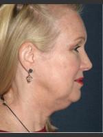Before Photo Non-invasive Chin Contouring - ZALEA Before & After