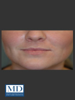 Before Photo Lip Filler 134 - ZALEA Before & After