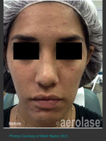 Before Photo NeoClear by Aerolase Acne Treatment - ZALEA Before & After
