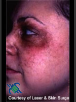 Before Photo Treatment of Facial  Cafe au Lait - Prejuvenation Before & After